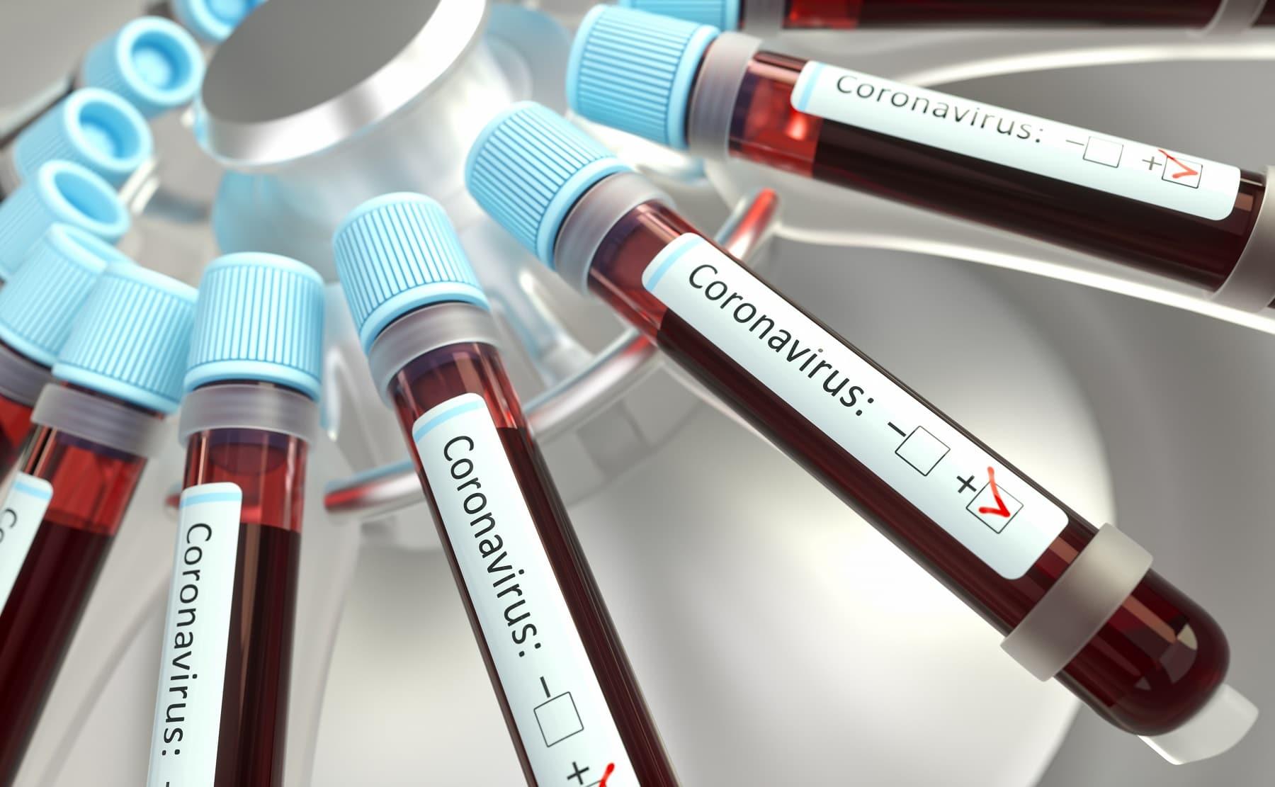 8672-ra nőtt az igazolt koronavírus-fertőzések száma Oroszországban